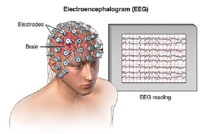 Eeg Signals Accurately Predict Autism >> Are Eeg Signals Likely To Predict Autism Autismag
