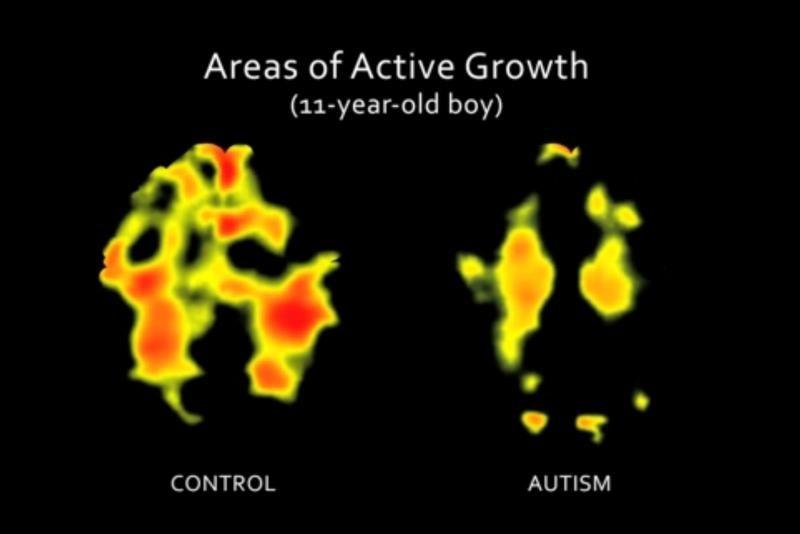 autistic brain growth